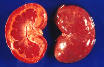 Kidney of a dog that died of leptospirosis. Multifocal interstitial nephritis and renal tubular necrosis are associated with a spotted appearance of the renal parenchyma (Courtesy of Noah's Arkive, The University of Georgia).